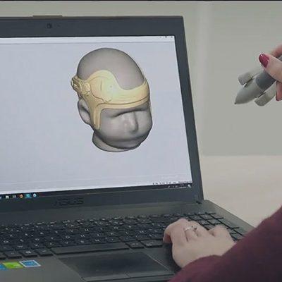 Impression de son appareillage orthopédique en 3D